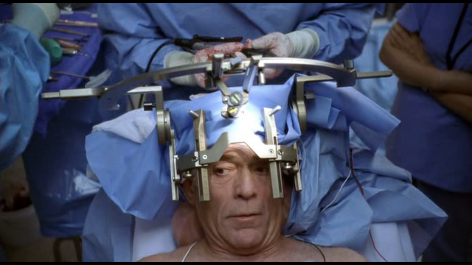 The Beneficial Mischief of Neurosurgery | Psychology Today