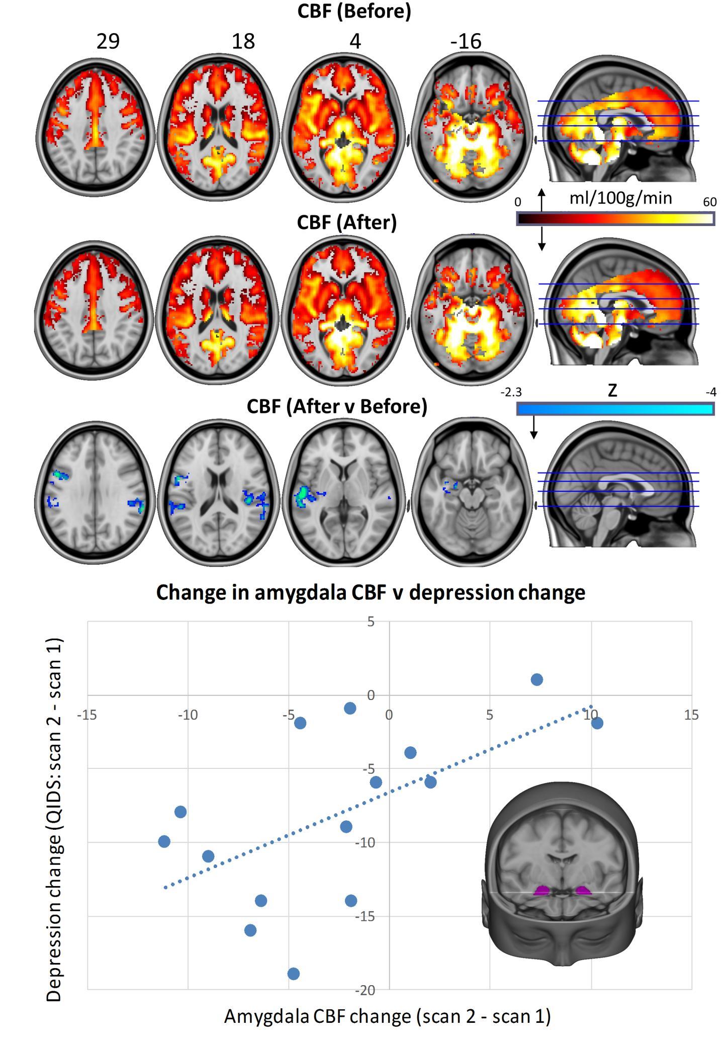 Magic Mushroom Compound Triggered Positive Personality Change