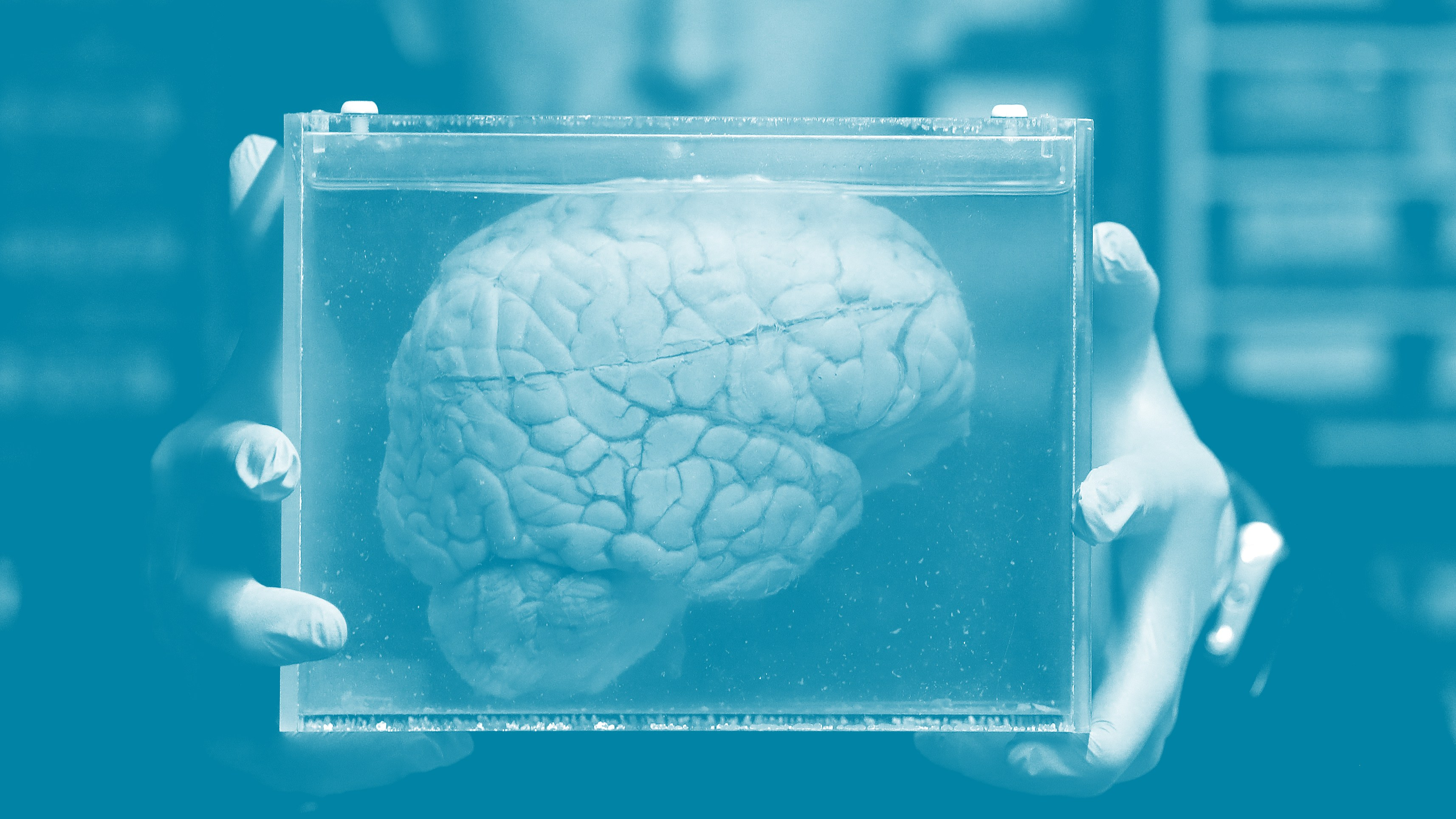 Changes in the brain make the corporate executive give away money