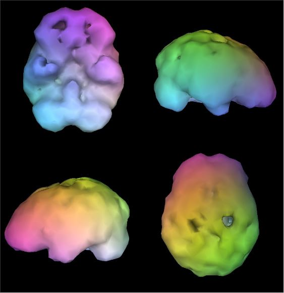 Brain SPECT imaging showing alcohol damage