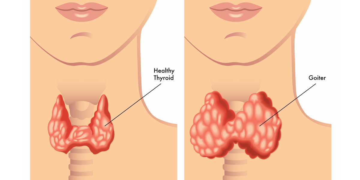 can diet cause thyroid problems