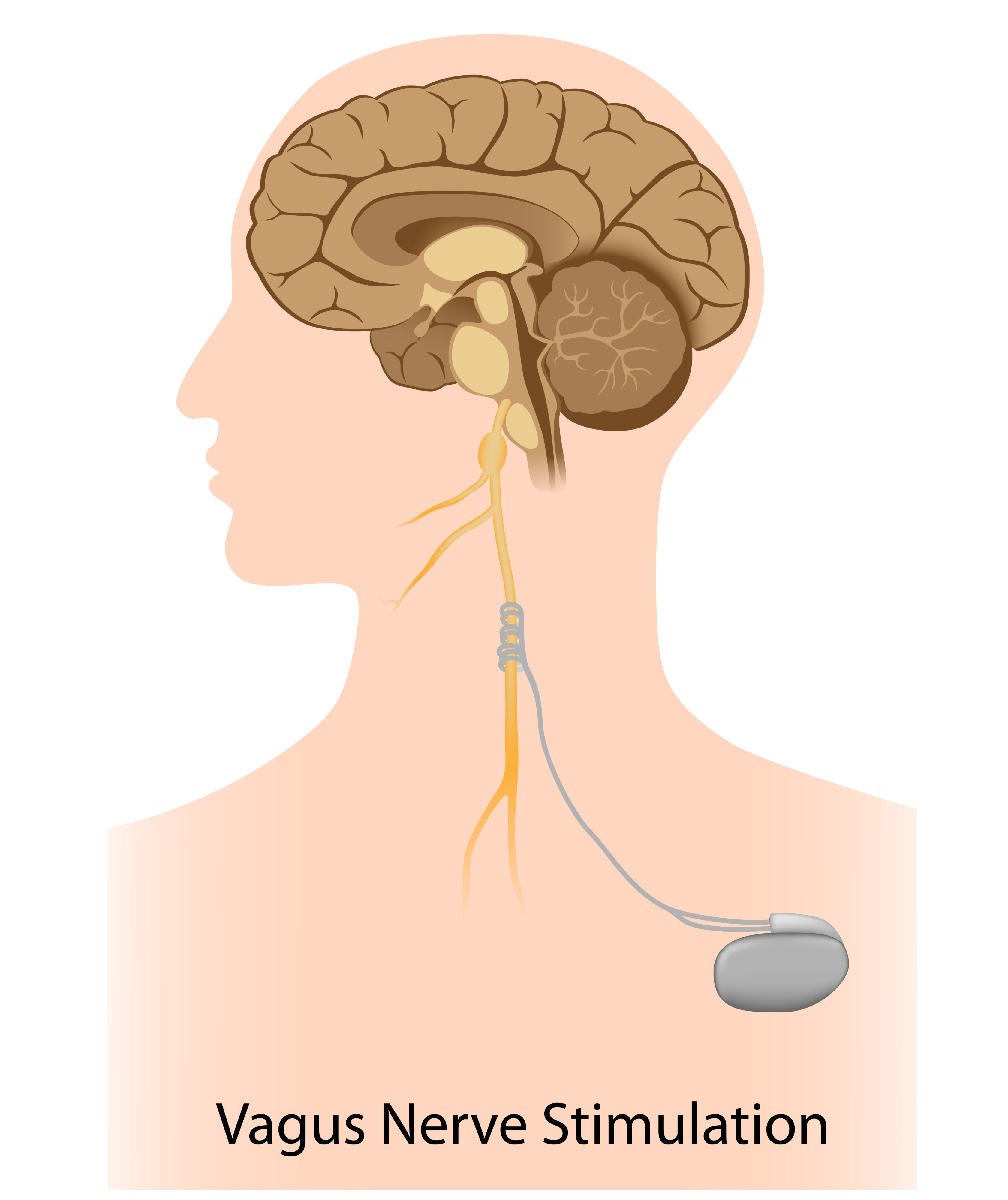 Vagus Nerve Stimulation Holds Promise For Treating Addiction