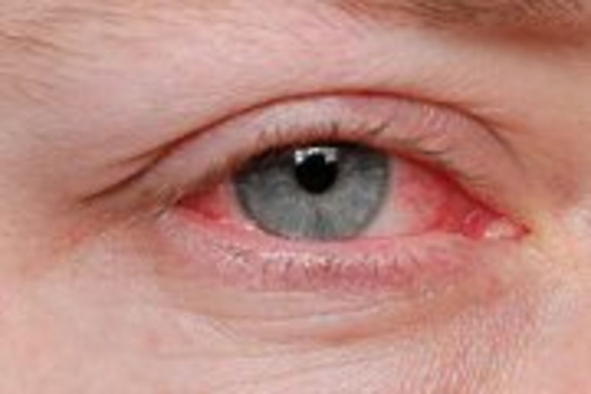 Natural Treatments for Pink Eye | Psychology Today