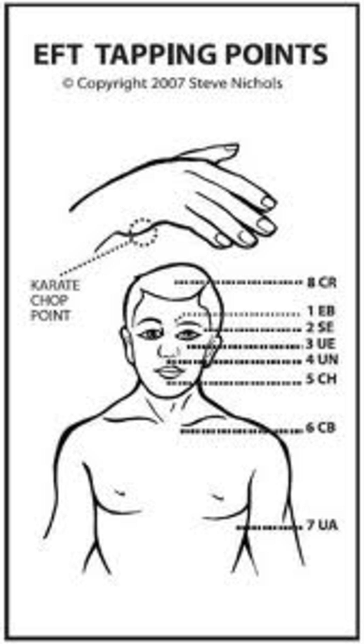 Wi workmans compensation permanent facial scar