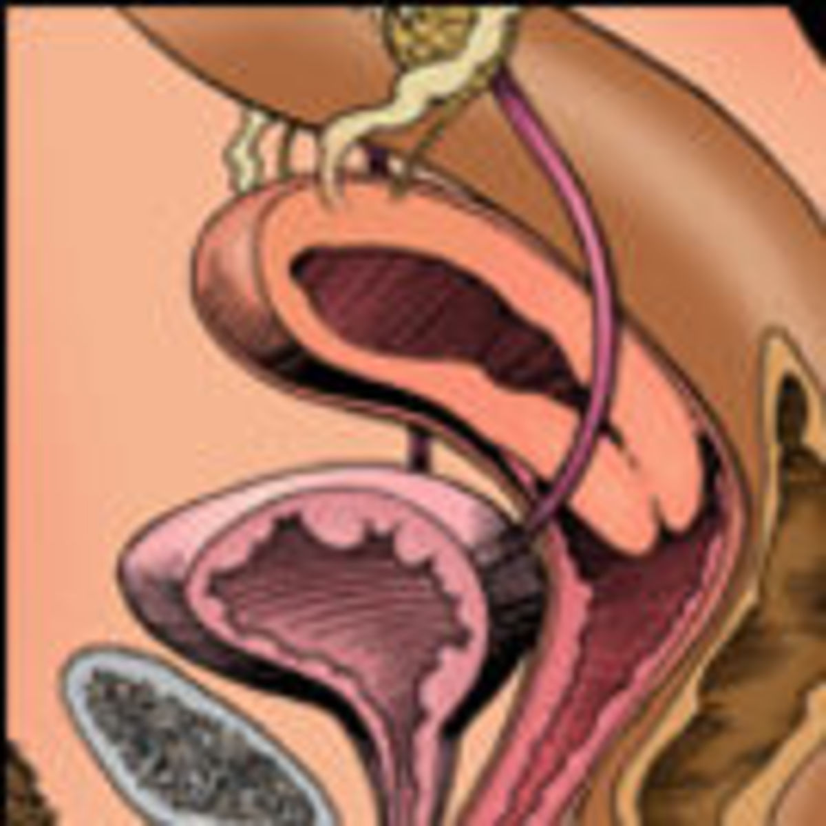 A Tipped Uterus and Intercourse Positions | Psychology Today