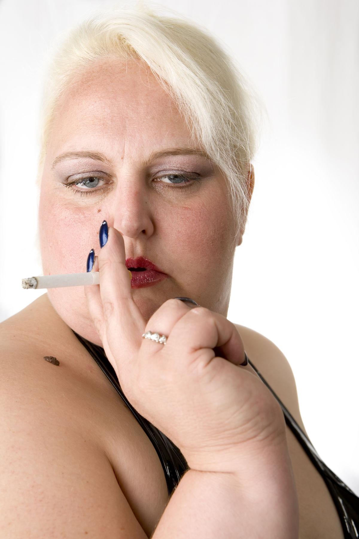 Do You Smoke? Are You Morbidly Obese? No Surgery for You
