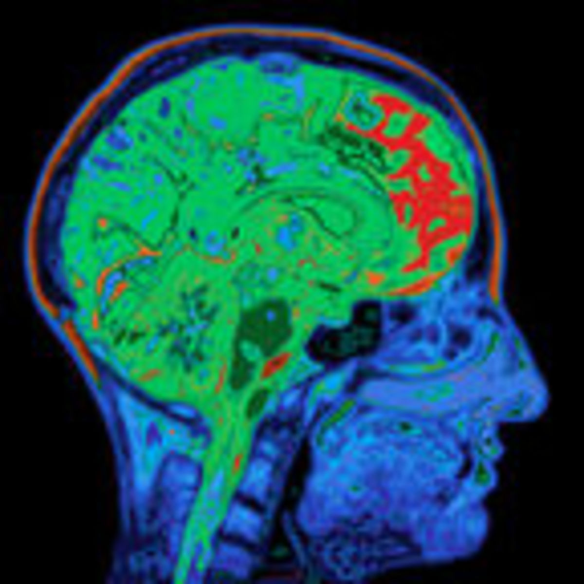 Can Brain Scans Diagnose Adhd Psychology Today