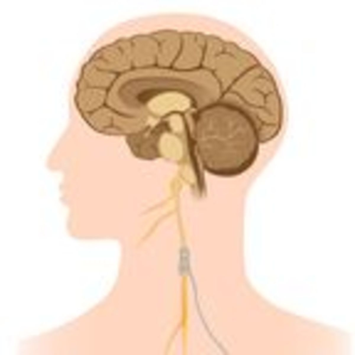Vagus Nerve Stimulation Holds Promise for Treating Addiction