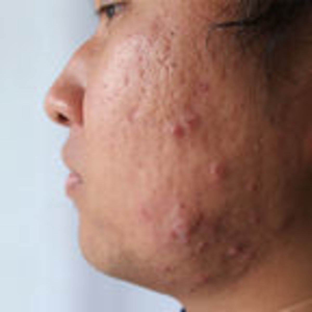 The Secret to Outsmarting Your Acne | Psychology Today