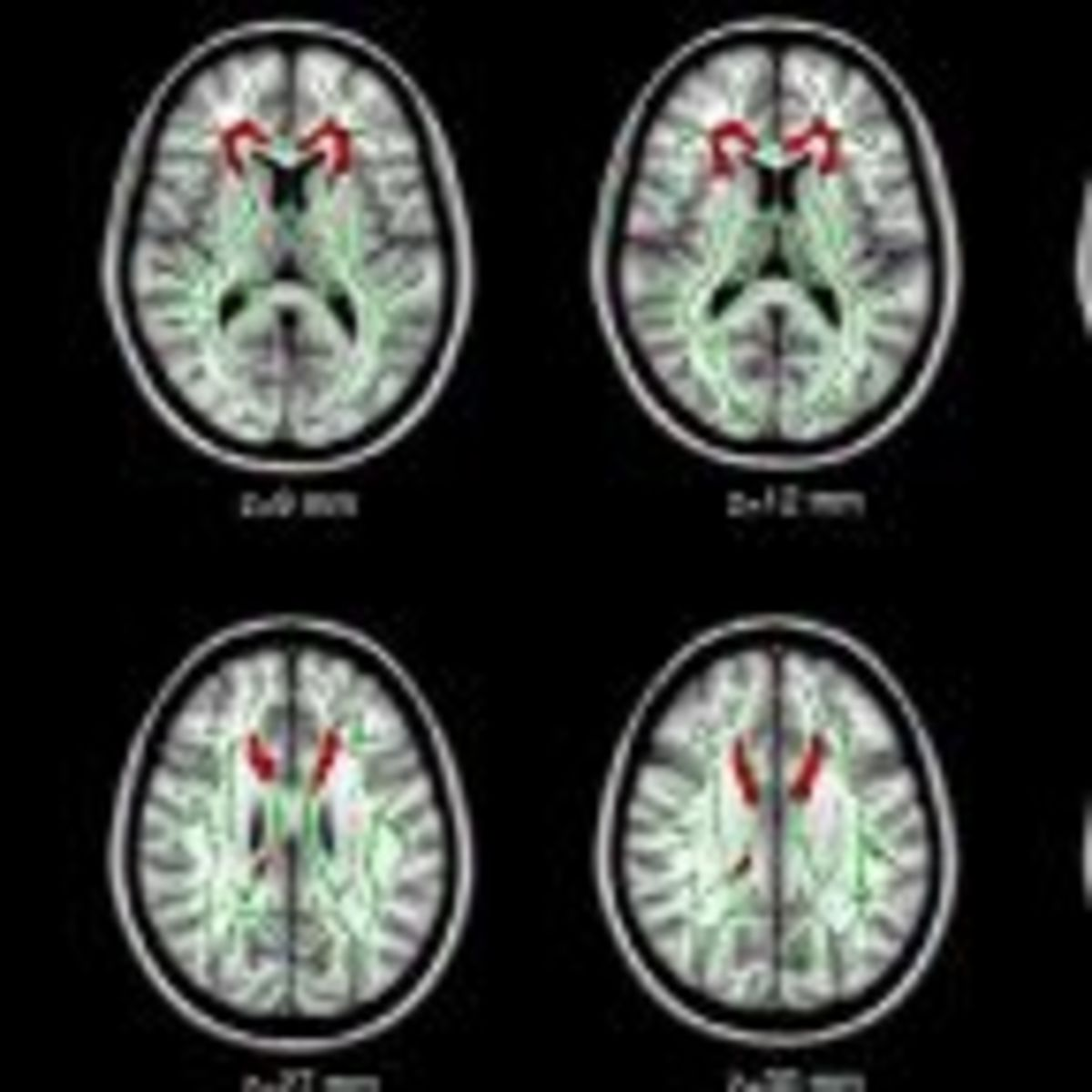 Gray Matters: Too Much Screen Time Damages the Brain | Psychology Today