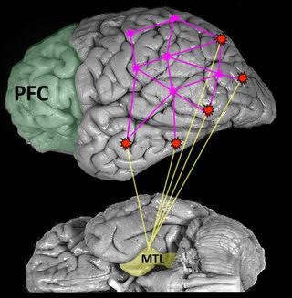 Brain image reprinted with permission from Digital Anatomist Interactive Atlas, University of Washington, Seattle, WA, copyright 1997.