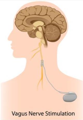 Alila Medical Media/Shutterstock