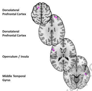 Moser et al., 2019