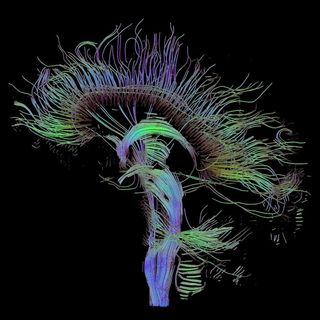 Harvard Study Decrypts the Ancient Mystery of Consciousness