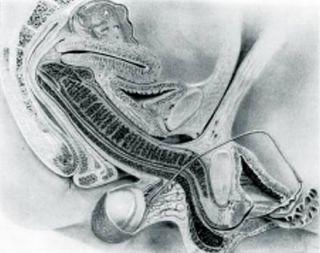 Putative MRI (ie not real)