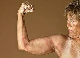 Diana Nyad displays her jellyfish scars