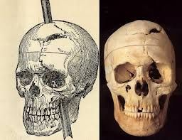 The skull of Phineas Gage