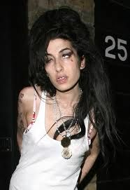 Amy Winehouse - severe alcohol and dug addict