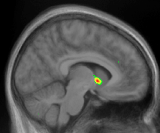 The neuroscience of pleasure and addiction psychology today nucleus accumbens in color ccuart Images