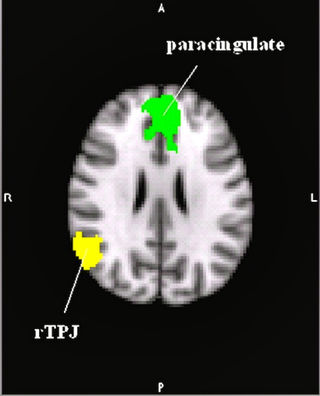 Abu-Akel, A.M., et al., Autism and psychosis expressions diametrically modulate the right temporo-parietal junction. Social Neuroscience, 2016.