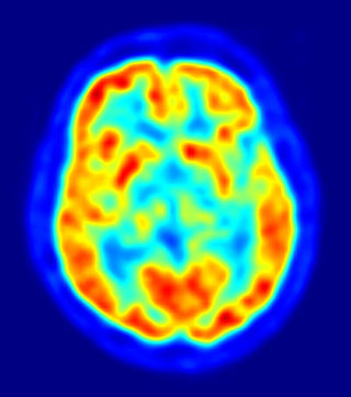 Using Brain Scans to Diagnose Mental Disorders | Psychology Today