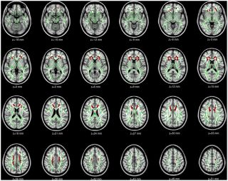 Asperger brain imaging study