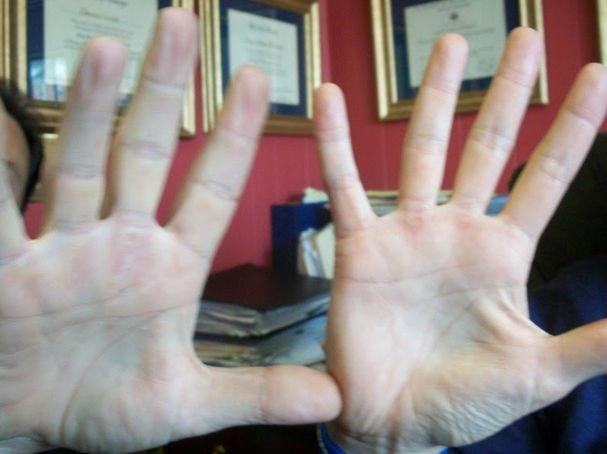 The Neuroscience Of Finger Length Ratio And Athletic Prowess Psychology Today
