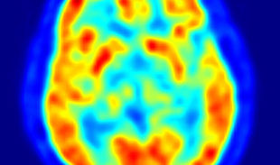3 New Findings On Human Intelligence