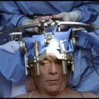 The Beneficial Mischief of Neurosurgery