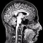 Source: Wikimedia Commons, fMRI Brain Scan by DrOONeil, Creative Commons Attribution Share Alike