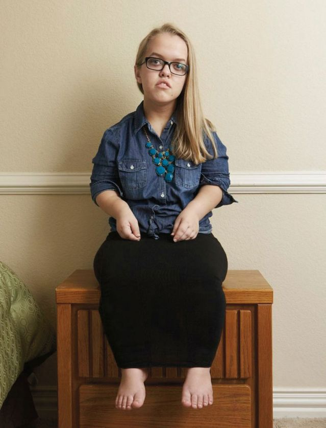 Female with dwarfism sitting on end table