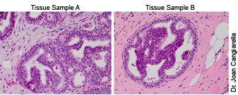 Core biopsies - DCIS Dilemma