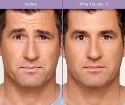 Danger of botox facial atrophy images 294