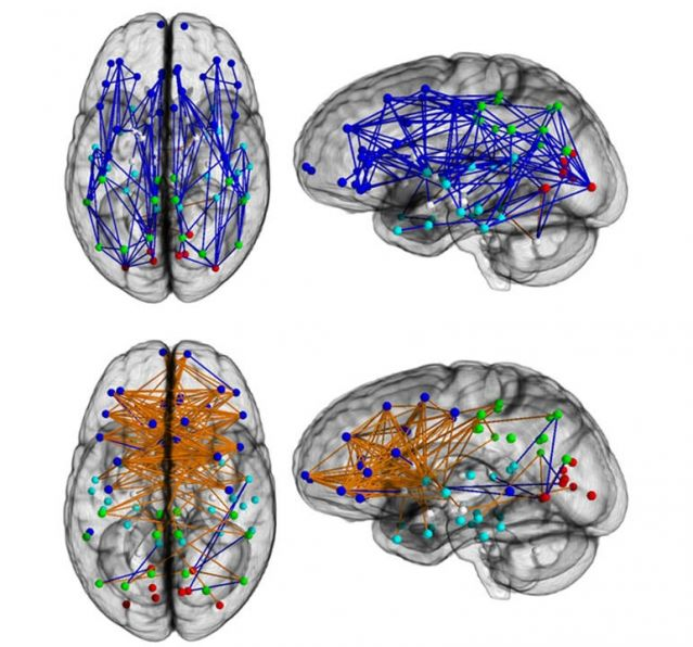 Brain Connectivity Varies Between Men and Women