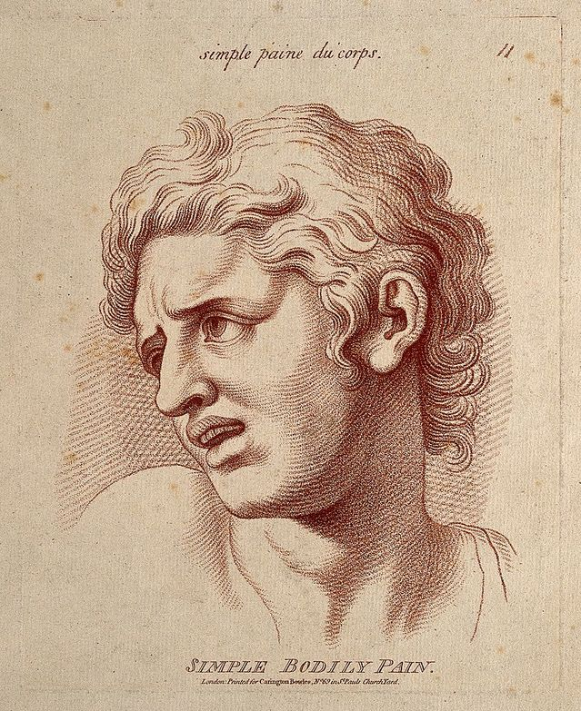 A man whose face expresses moderate pain/William Hebert/Wellcome Images/CC 4.