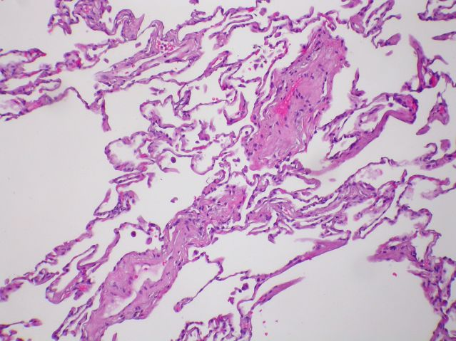 Pulmonary veno-occlusive disease (PVOD) - Case 269 by Yale Rosen/Flickr Creative Commons