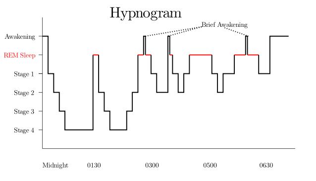 Sleep Hypnogram from Wikimedia Commons Royalty Free