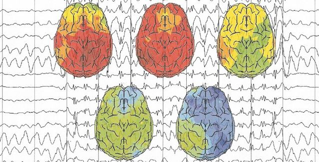 surfing brainwaves with eeg psychology today