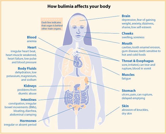 Dating someone bulimia