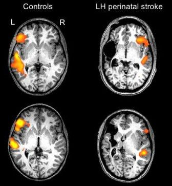 Language Processing Can Flip from Left Brain to Right Brain