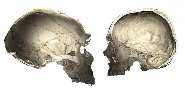 Why Is the Human Cerebellum Making Headline News?