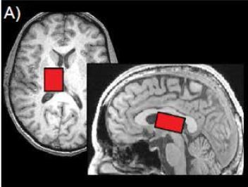 How Yoga and Breathing Help the Brain Unwind