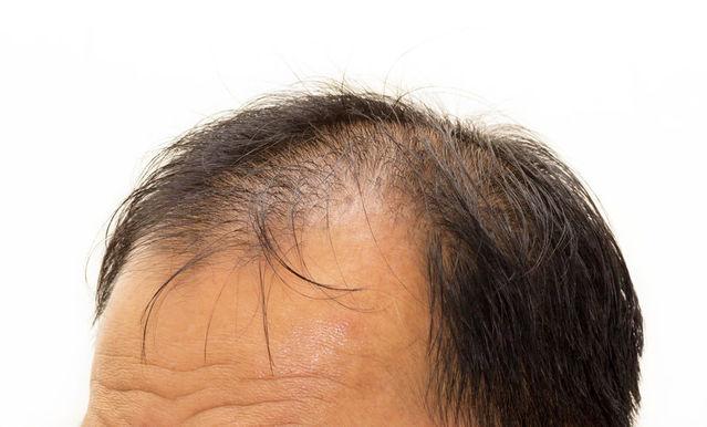 7 Ways to Treat Hair Loss