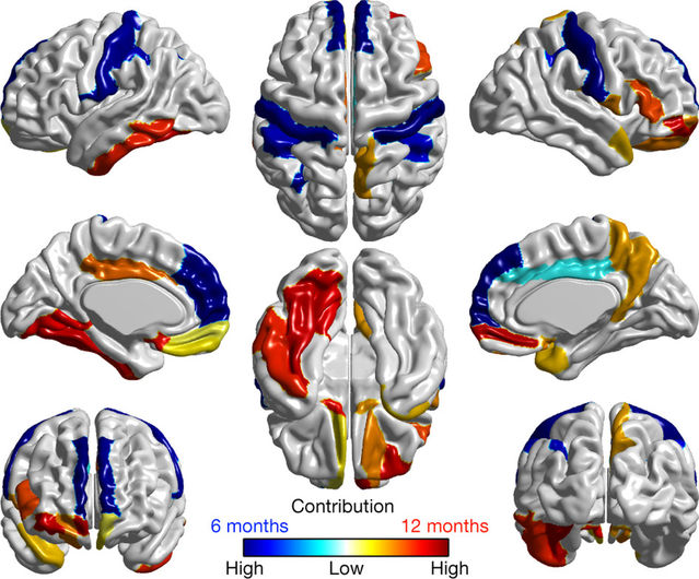 Brain Scans May Forecast Autism In High >> Early Brain Over Growth Is Indicative Of Autism As Predicted