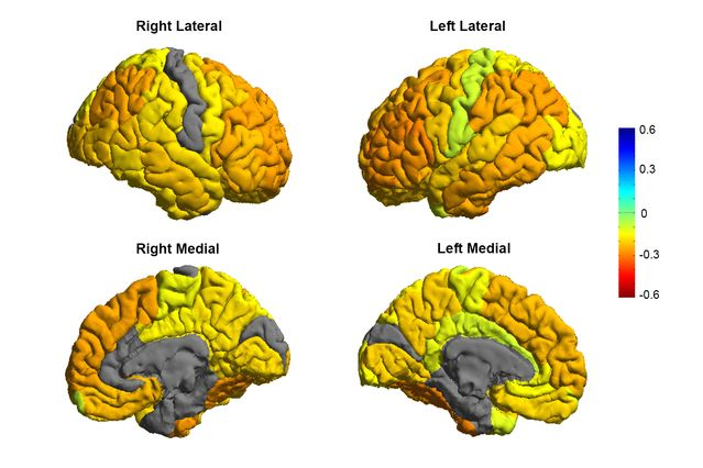 New MRI Study Leads to Roadmap of Bipolar Brains