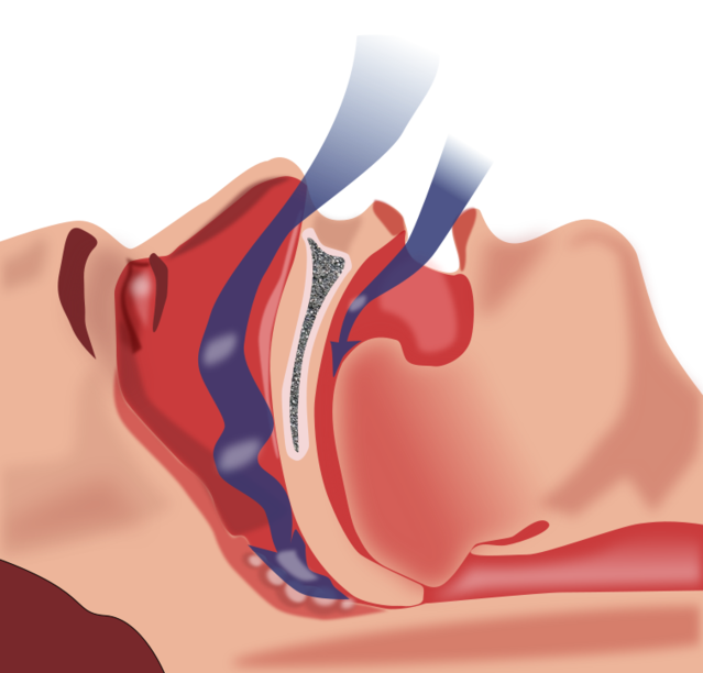 How Sleep Apnea Causes Biochemical Havoc in Your Brain