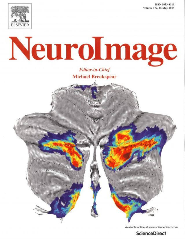 NeuroImage/Elsevier (Volume 172, 15 May 2018)