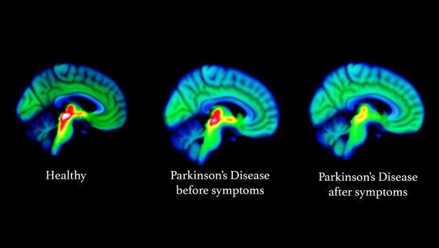 Neurodegeneration Imaging Group, King's College London