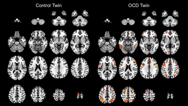 Brain Imaging Research Division, Wayne State University School of Medicine, CC BY-SA