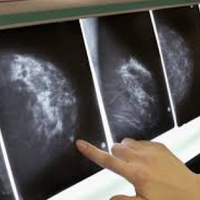 Making The Best Decision For Your Breast Cancer Surgery